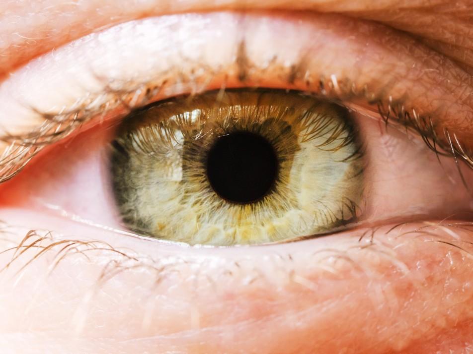 Lentilles de vue : Journalière, mensuelle ou jetable?